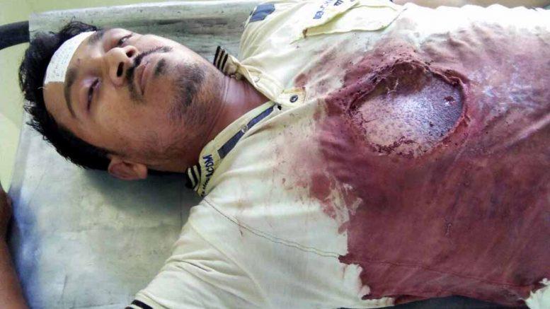 Bullet ridden body Rafiqul Sheikh at JNM Hospital in Kalyani