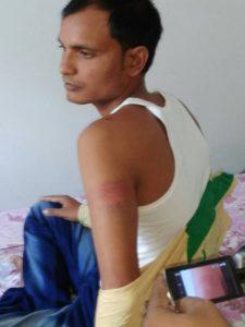 Sadiqul Ali Mondal with injured arm