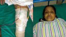 Laxmi Basak with her replaced knee after the surgery at Kalyani JNM&CM