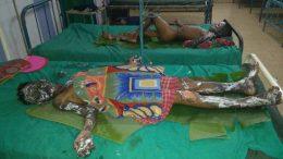 The injured victims at Saktinagar district hospital in Krishnanagar.