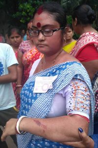 Independent candidate Supriya De showing her injured hand being allegedly beaten up by Trinamul activists in Ward-1
