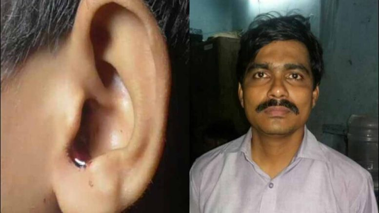 Accused head master Bhaskar Biswas (left) and the injured left ear of the student