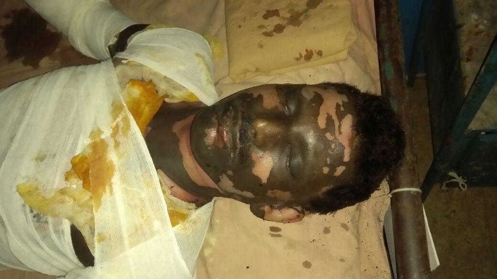 Blast victim Goutam Das at Saktinagar district hospital in Krishnanagar