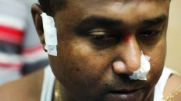 An injured police officer of Chakdaha Police station