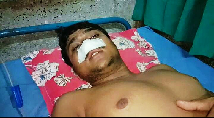 One of the victims at Ranaghat Sub Divisional Hospital